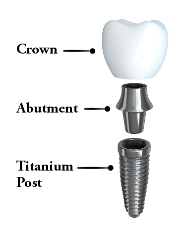 The 3 parts of a dental implant: post, abutment, and a dental crown