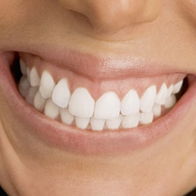 Woman grinding her teeth