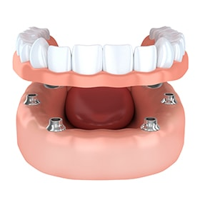 Implant-supported dentures, which replaces whole arches