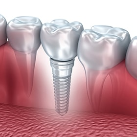 Single dental implant, which can replace one missing tooth