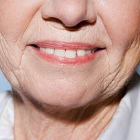 Aging, which can cause yellow teeth