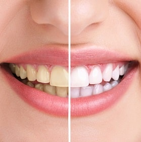 Before and after photo of smile after teeth whitening.