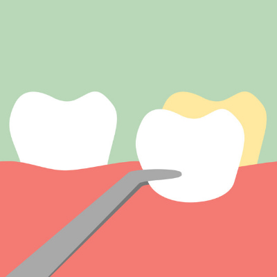 Graphic of a dental veneer being placed over a discolored tooth.
